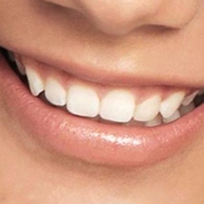 Sorriso02