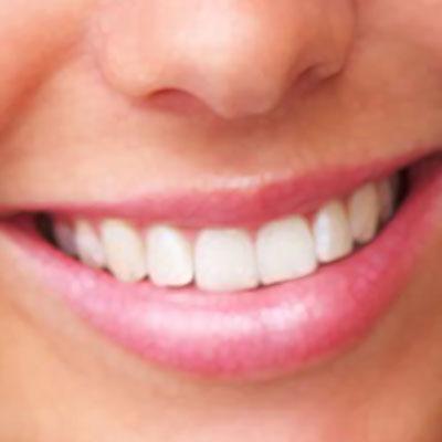 Sorriso04