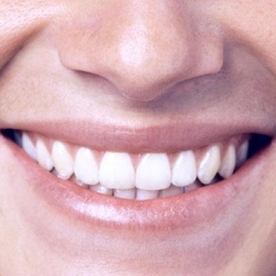 Sorriso05