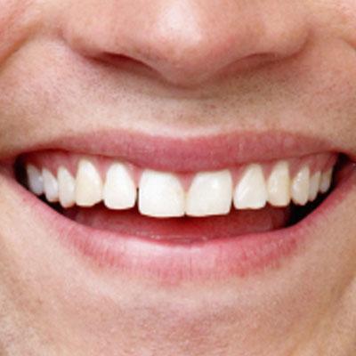 Sorriso06