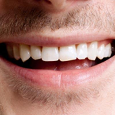 Sorriso08